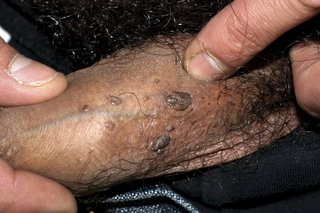 hpv warts how long do they last