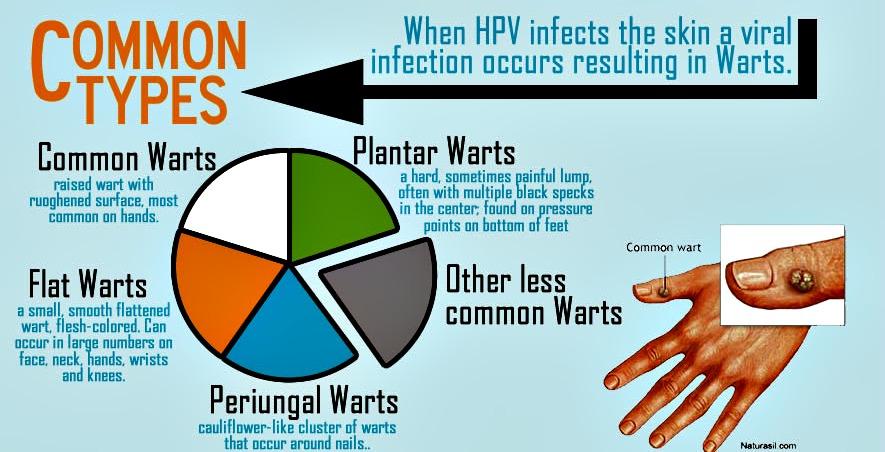 hpv warts strains