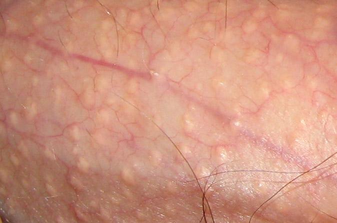 human papilloma ferfiaknal