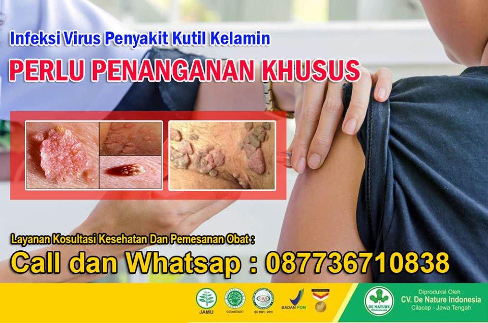 papilloma virus femminile sintomi papiloma escamoso gengiva
