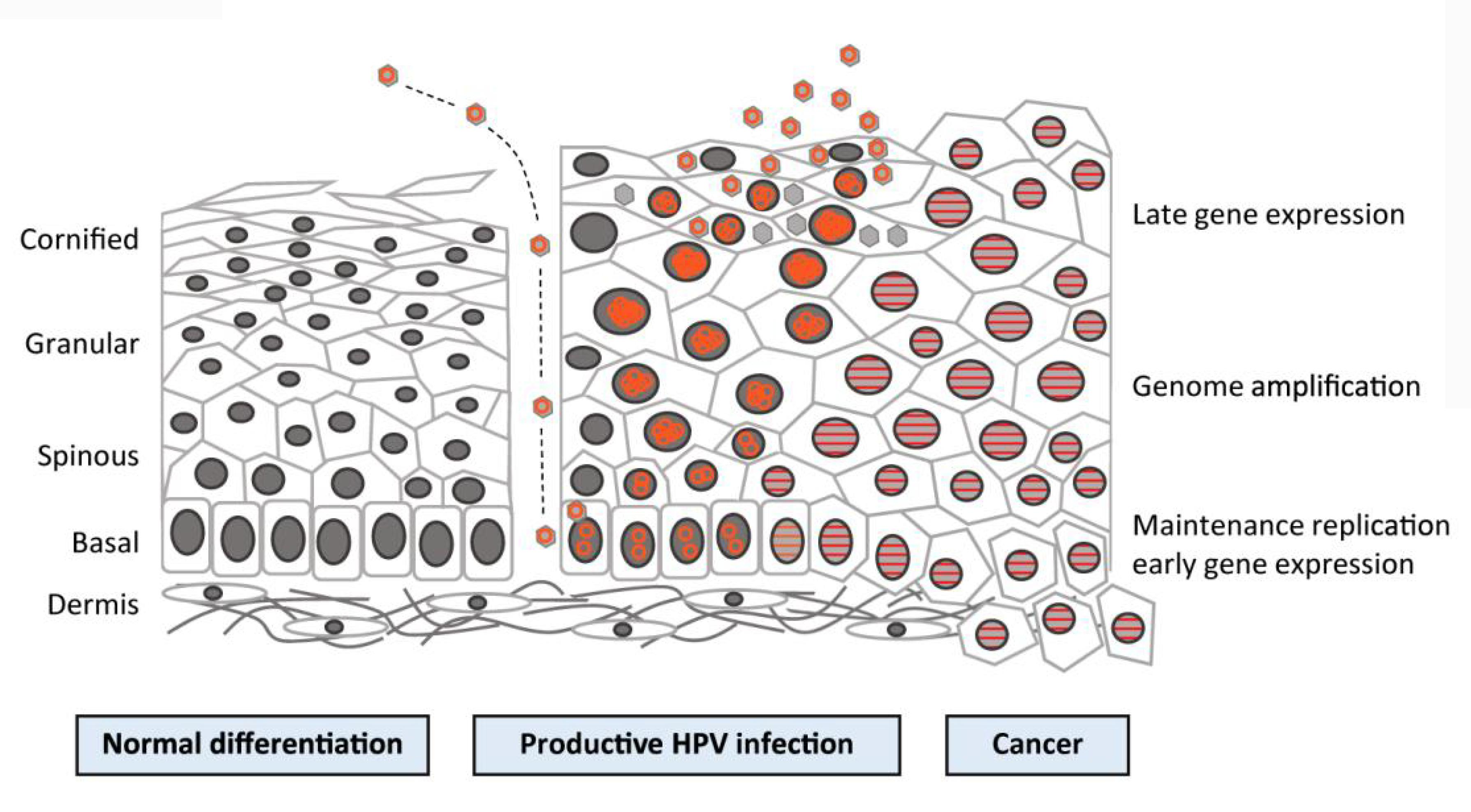 sarcoma cancer information
