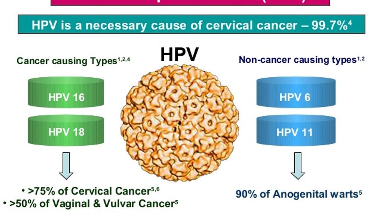 human papillomavirus (hpv) is linked to cancer because papilloma intraduttale intervento