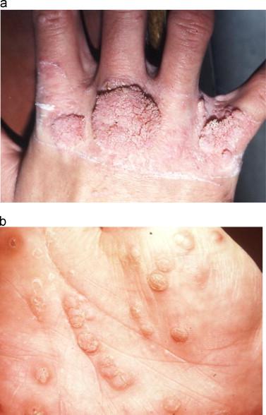 human papillomavirus in face