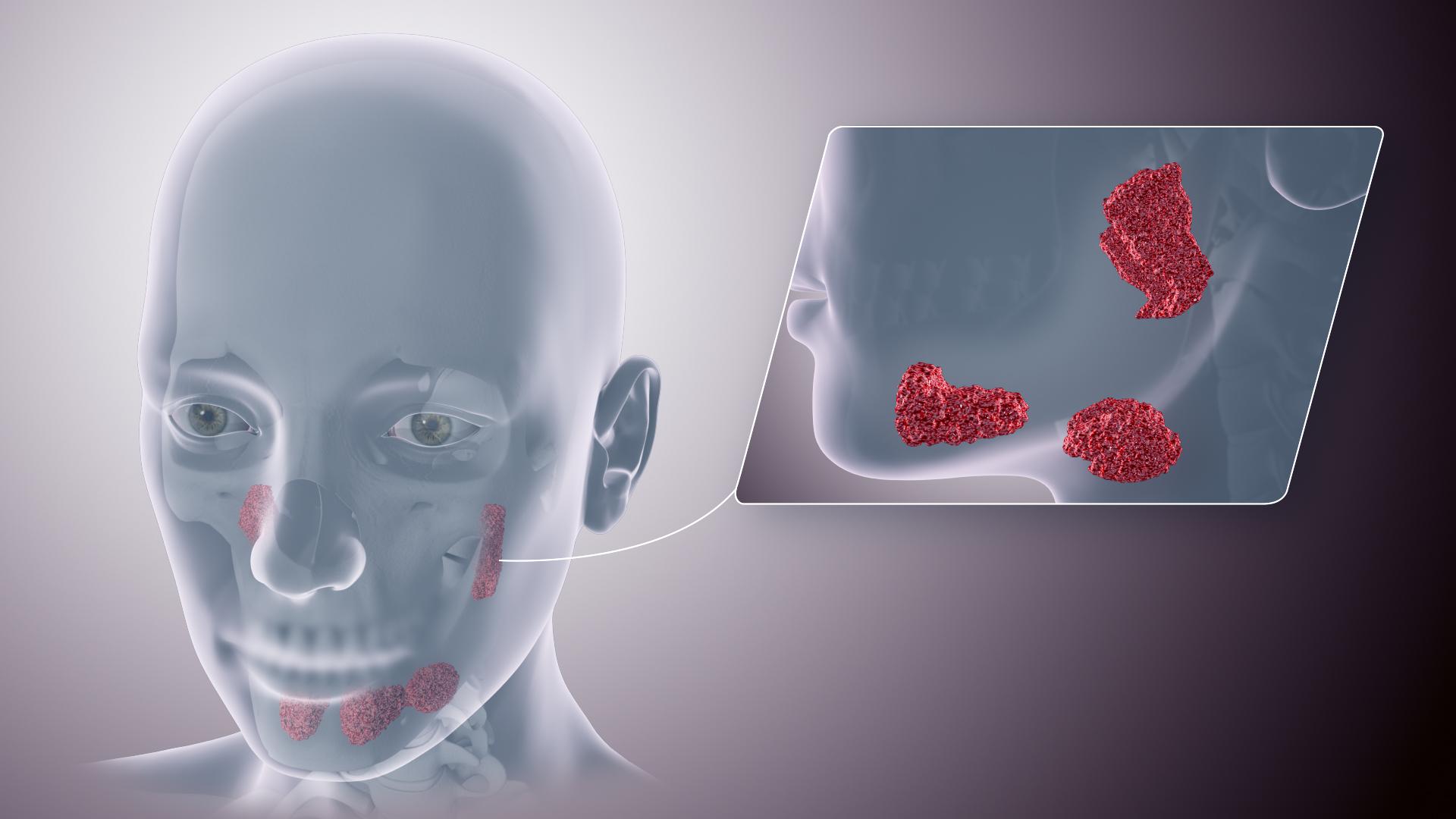 human papillomavirus parotid gland