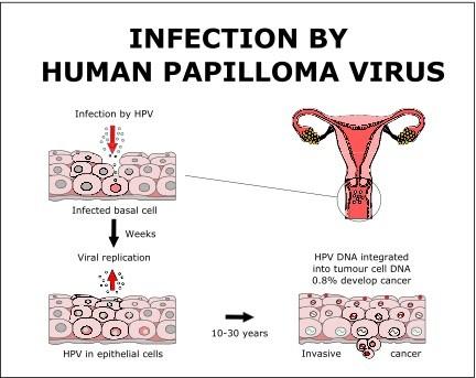 human papillomavirus transmission after treatment