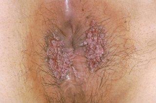 human papillomavirus warts look oxiuros medicamentos caseros