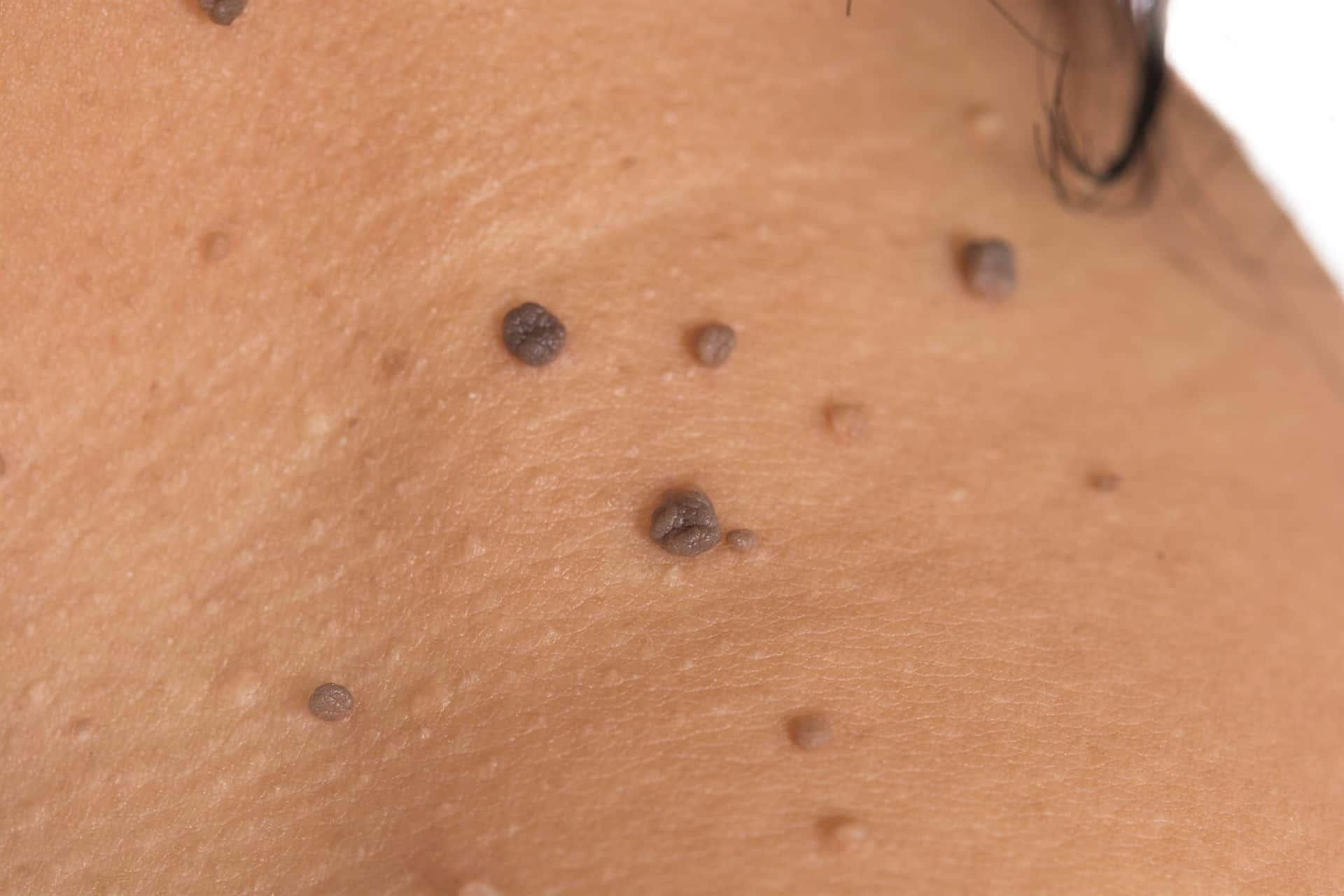 imagenes de papiloma humano en la cara