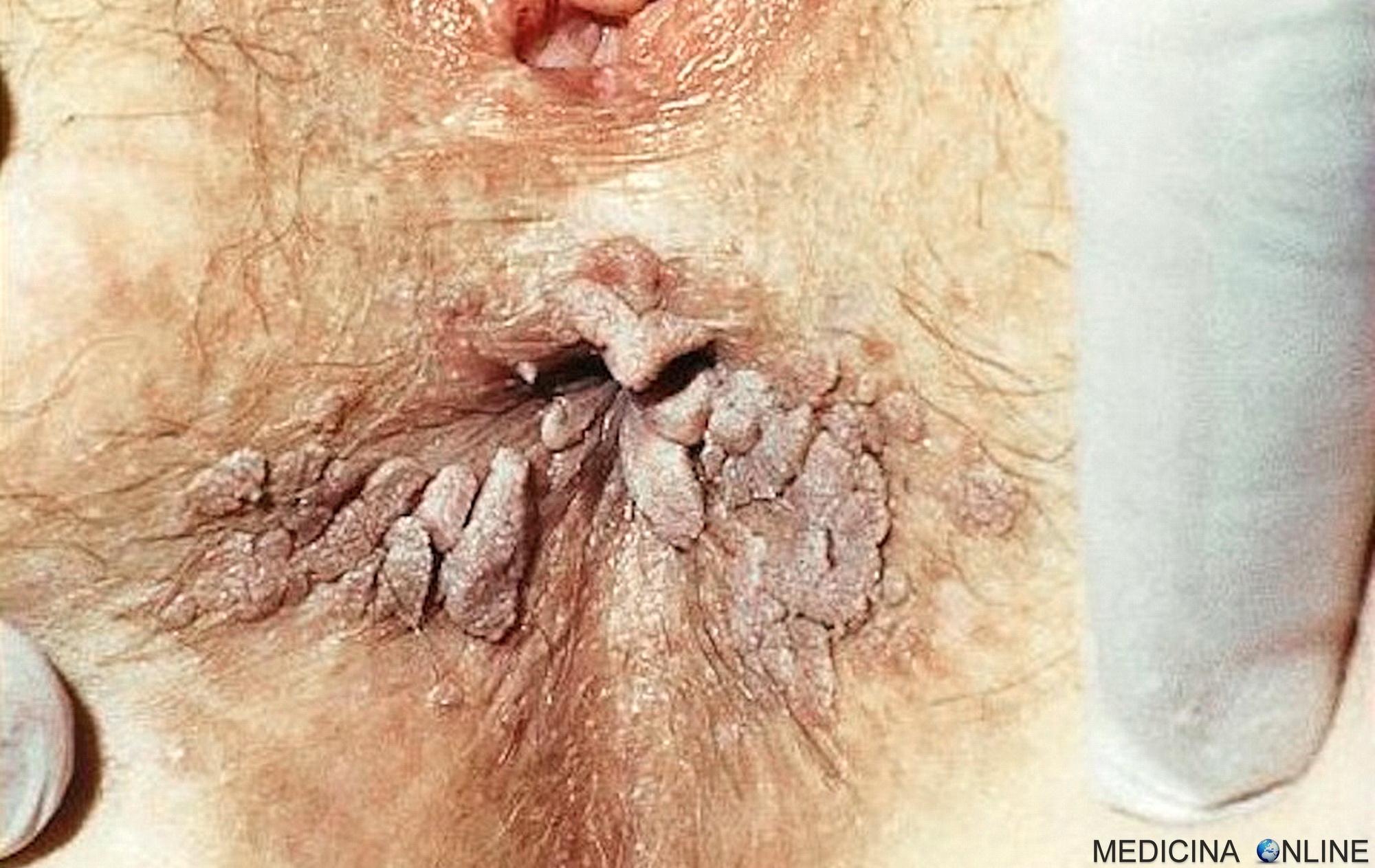 intervento rimozione papilloma virus humanes papillomavirus mann