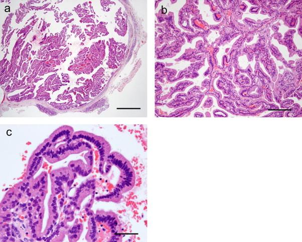 human papillomavirus infection causes breast cancer genetic heterogeneity