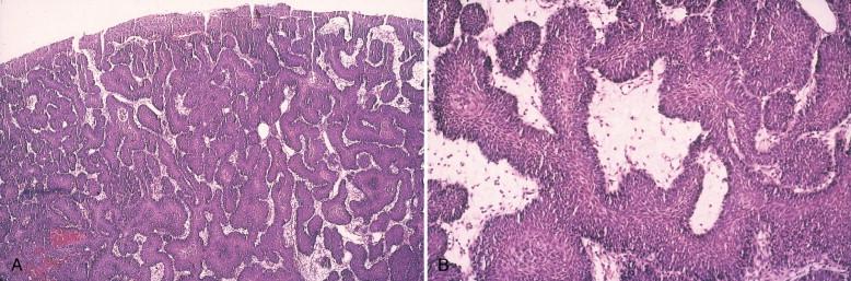 inverted papilloma bladder follow up