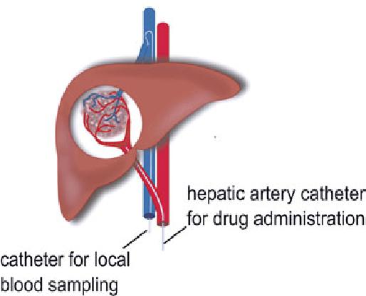 liver cancer hepatic vein
