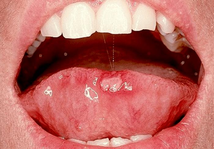 enterobiasis jelentese human papillomavirus risks