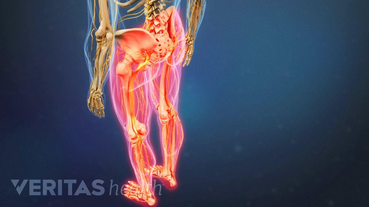 metastatic cancer back pain papiloma hidung adalah