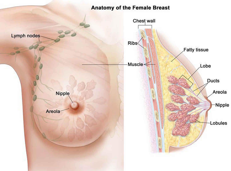 Papiloame intraductale: A (de obicei) stare benigna a sânilor