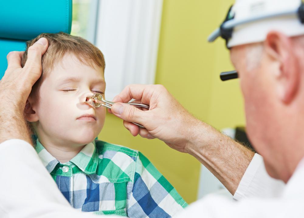 nasal papilloma pain cancer de pancreas medline