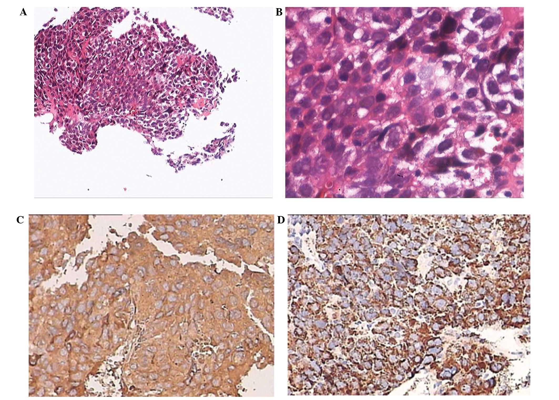 neuroendocrine cancer (hcc)