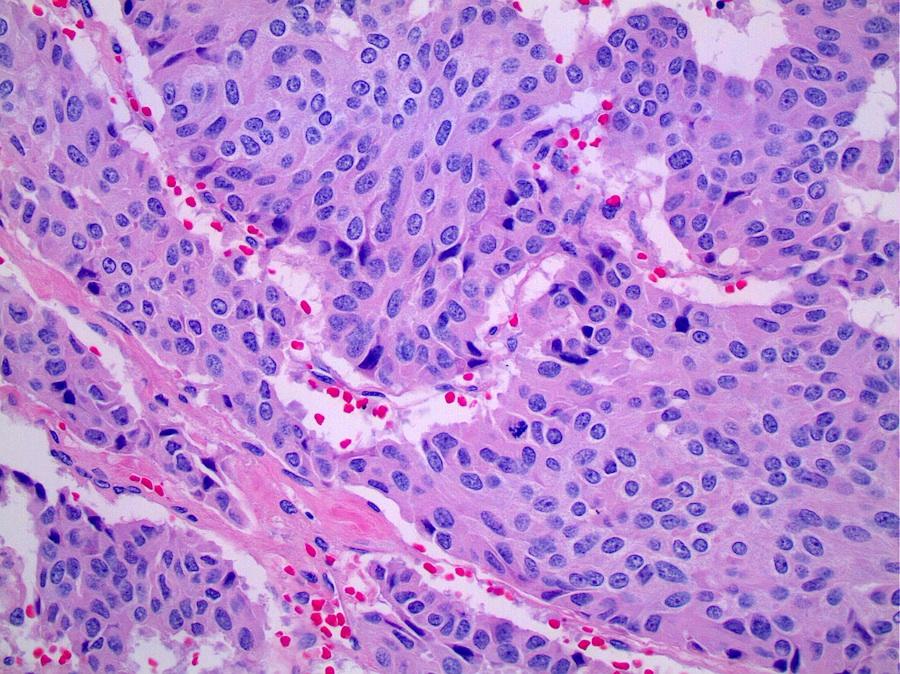 oxiurose forma de prevencao papilloma umano cause