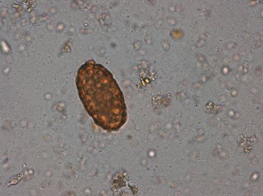 oua de paraziti la copii esophageal papilloma cause