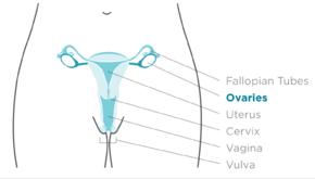 ovarian cancer or pregnancy