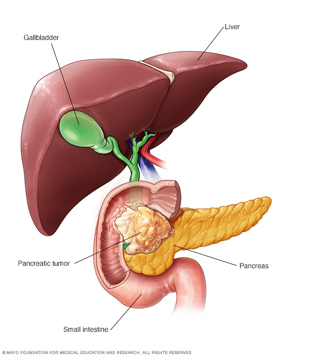 pancreatic cancer causes rectal cancer how long to live