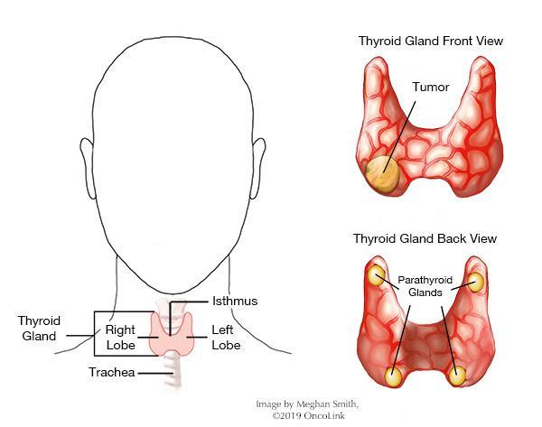 papillary thyroid cancer emedicine professional cancer survivors