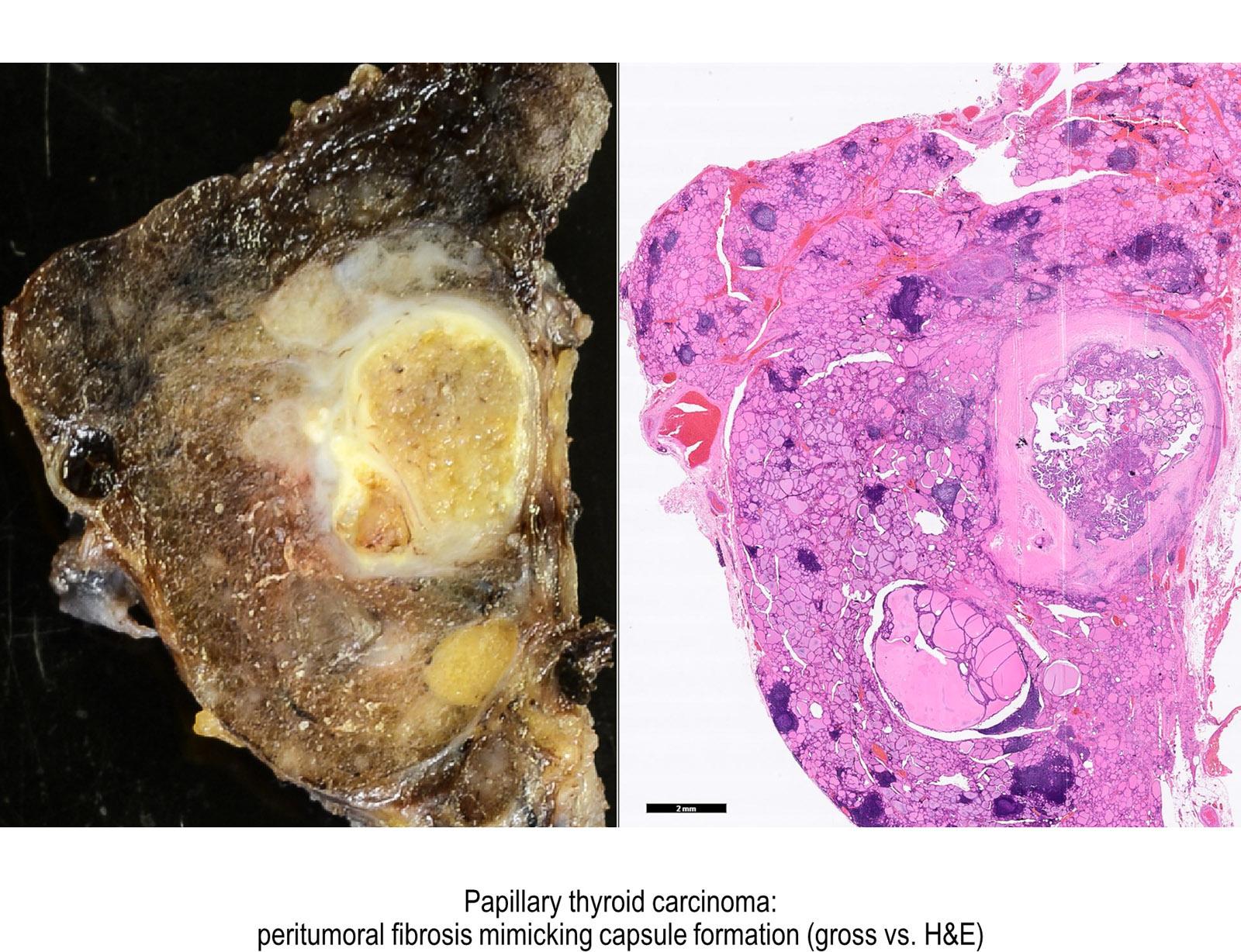 helminth infection eosinophilia detoxifiant si protector hepatic