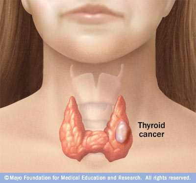 cancer bronhopulmonar diagnostic diferential