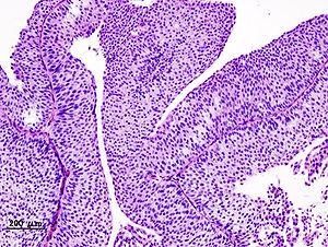 papillary urothelial carcinoma bladder