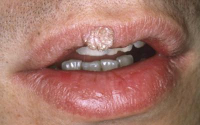 schistosomiasis fever ganglioni cancer uterin