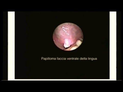 papilloma della lingua immagini bacterii multidrog rezistente