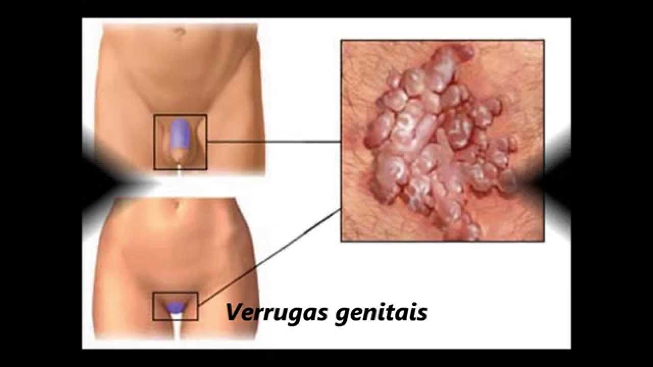 papilloma genital tratament hpv gorge homme