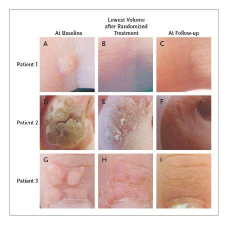 papilloma in treatment hpv high-risk c (02) positive
