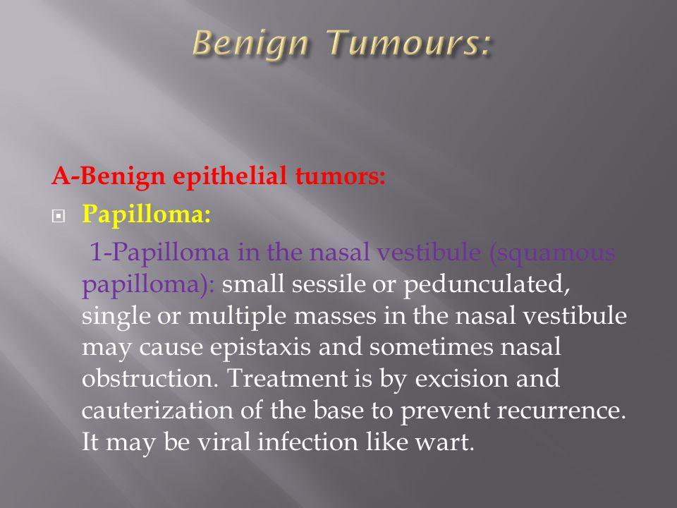papilloma nasal obstruction