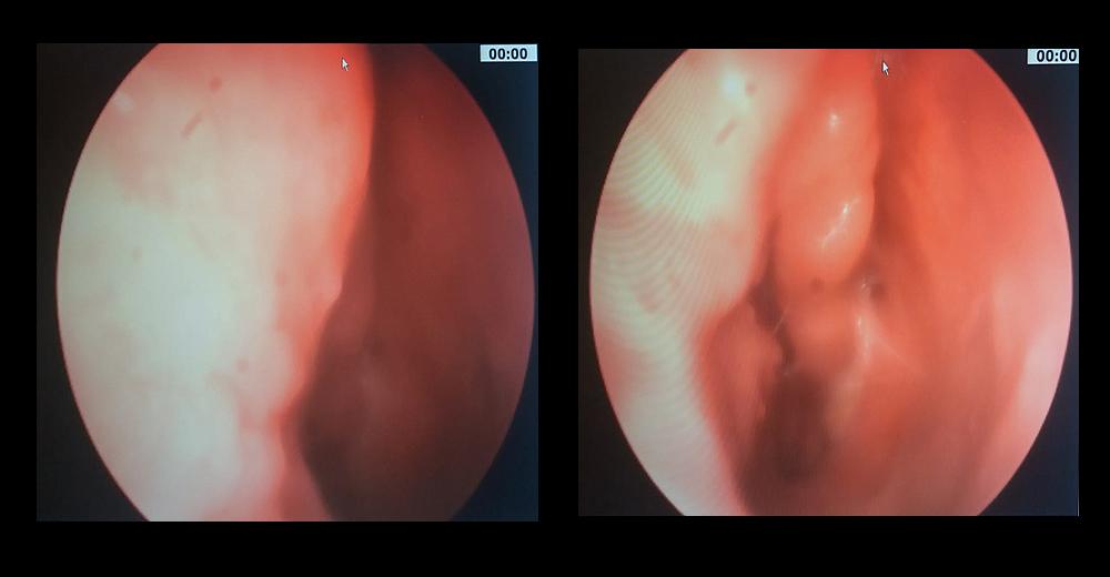 papilloma nel naso oxyuris equi zoonose