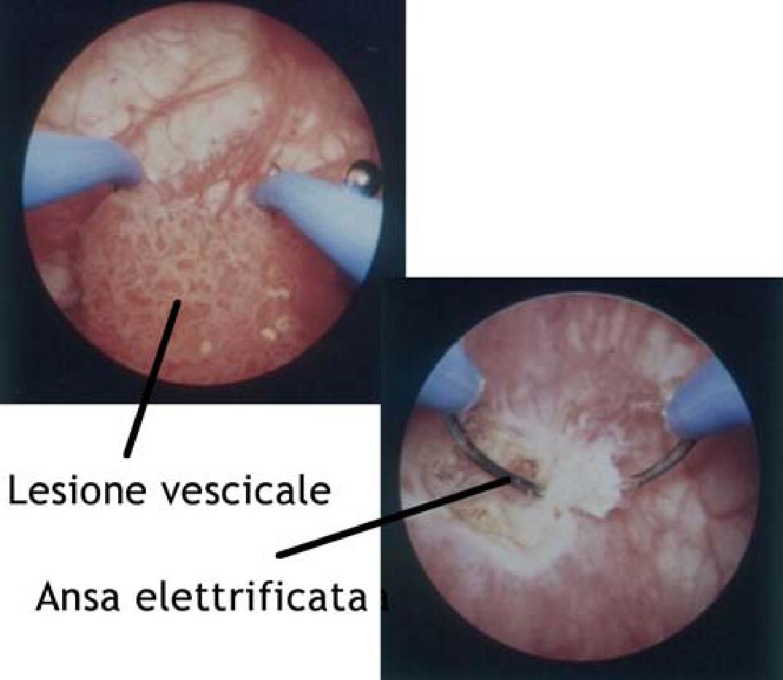 papilloma vescicale t1