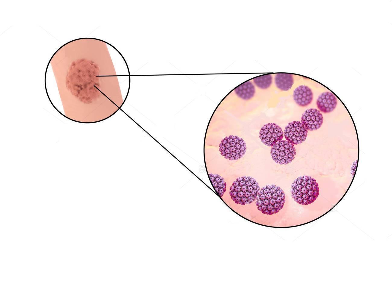 papilloma virus e ritardo ciclo