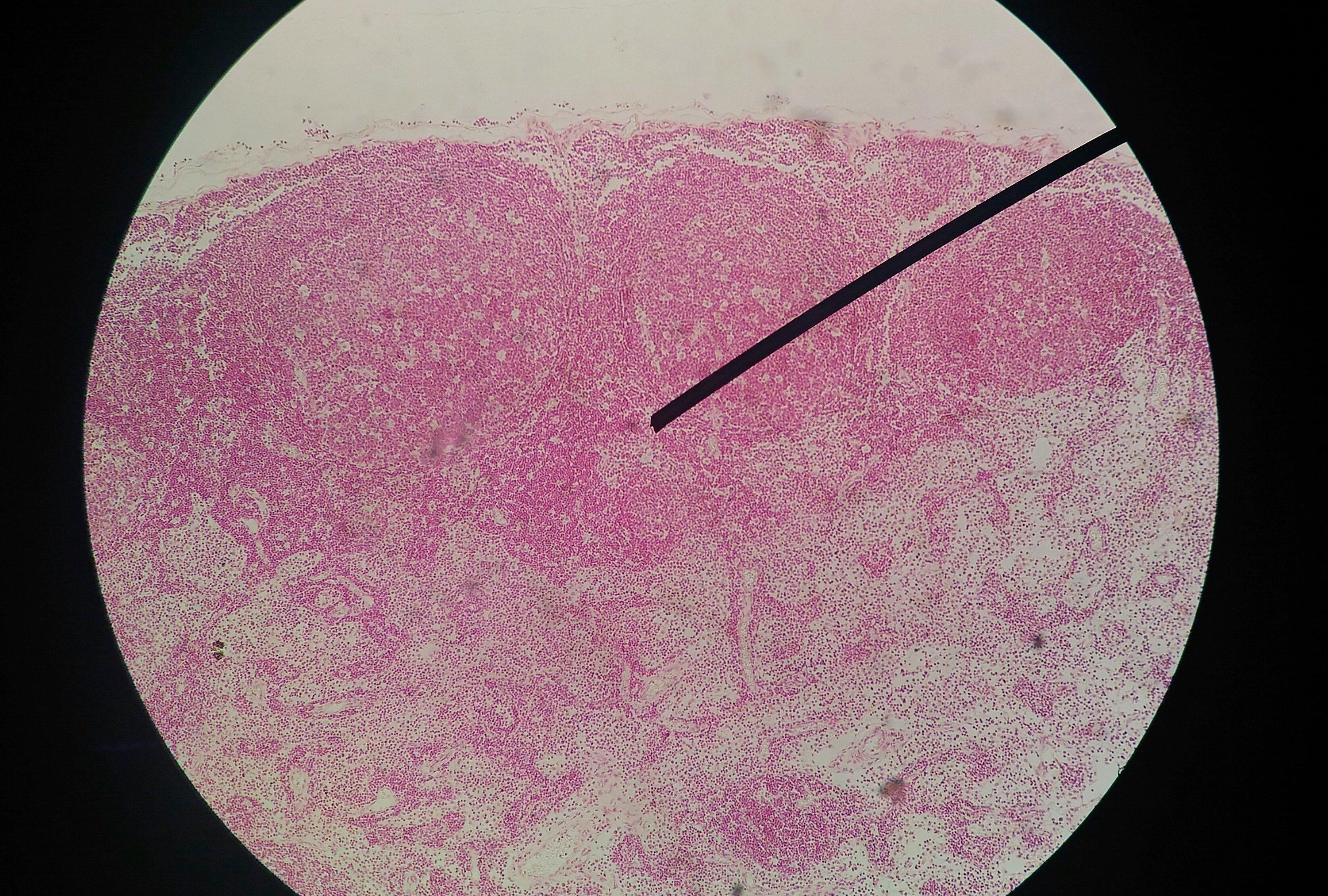 papillomavirus genital herpes