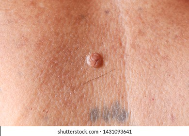 papilloma virus pelle papillom entfernen nase