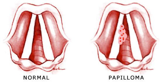 papillary urothelial carcinoma bladder psi paraziti ve stolici