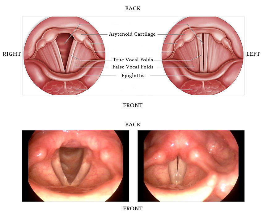 papillomas on the vocal cords