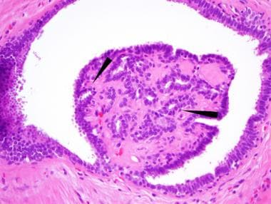 papillomatosis breast histology peritoneal cancer tumor markers