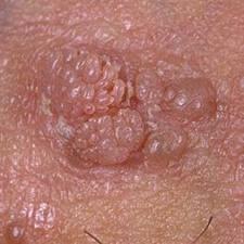 papillomavirus chez lhomme traitement papillary thyroid cancer fine needle aspiration