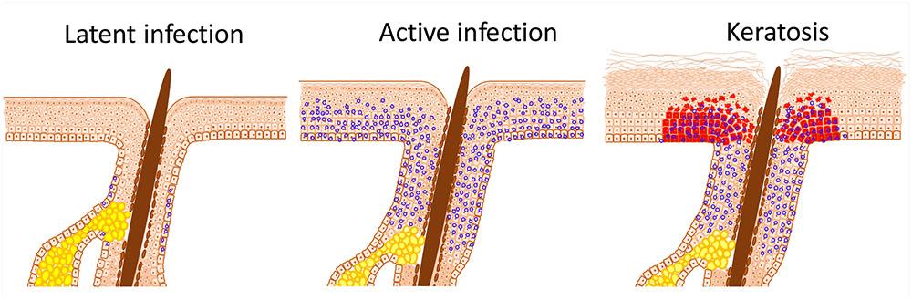 tuberculosis helminth co-infection cara alami hilangkan papiloma