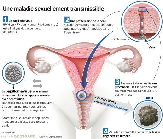 papillomavirus retrait uterus