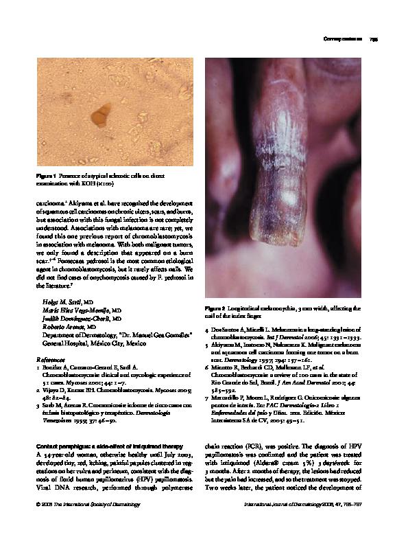 papillor anti papilloma cream hpv vaccine danger