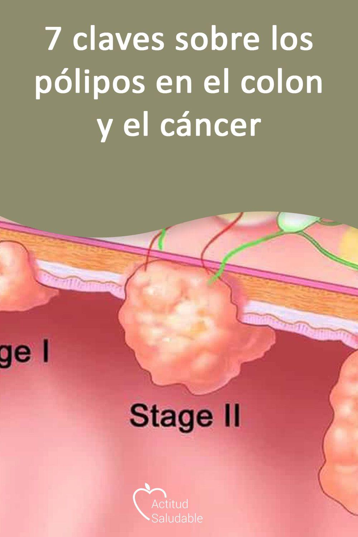papilloma virus 56