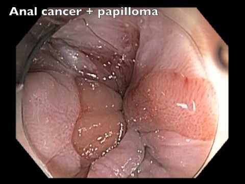 papilloma nose papillary thyroid cancer diagnostic