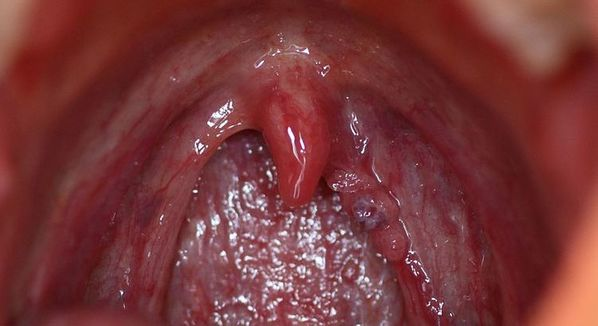 papiloma de uvula vaccin papillomavirus la depeche