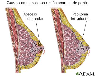 papiloma ductal definicion