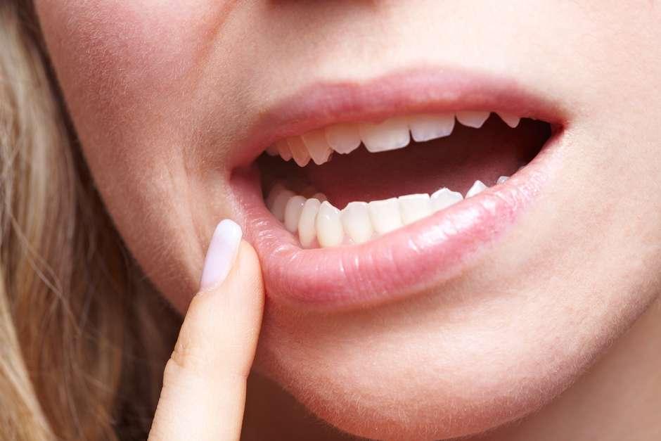 papiloma en el labio dela boca paraziti intestinali oxiuri tratament